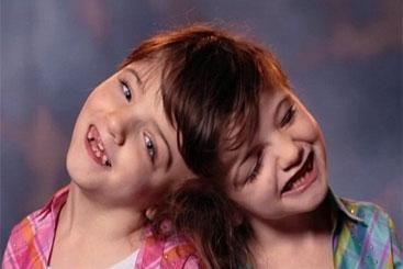 Gêmeas siamesas sentem as mesmas emoções e desafiam a medicina