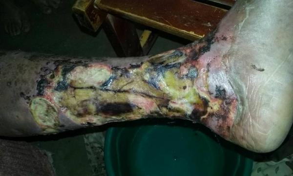 DESCASO, INDIGNÇÃO E REVOLTA: Internautas se revoltam com negligência medica e descaso do Hospital Regional Dom Moura